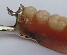 Das Bild zeigt eine NICHT silanisierte  Prothesenstelle.